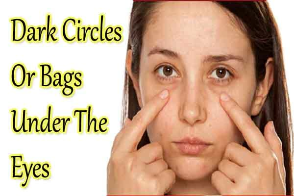 Dark circles or Bags under the Eyes