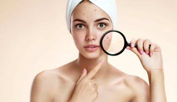 How to get rid of acne immediately