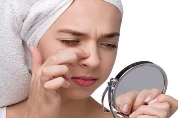 How To get rid of blackheads from your nose with a spot cleaner.
