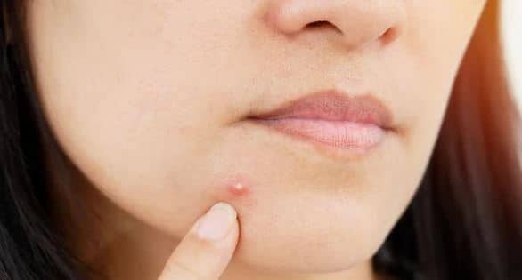 How To Get Rid Of Pus Filled Pimples