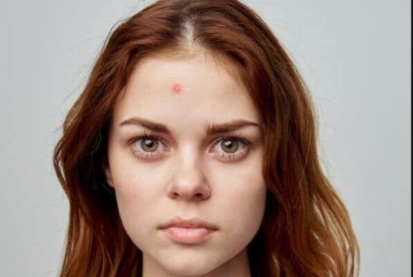 How To Get Rid Of Red Pimples
