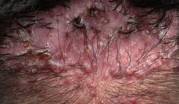 How To Get Rid Of Pimples on scalp