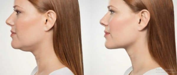 How to get rid of turkey neck without surgery